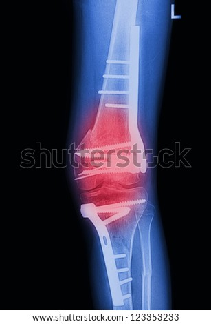 X Rays image  broken knee joint with implant,Image x-rays painful of knee joint - stock photo