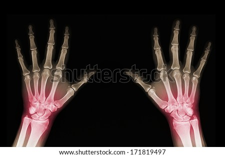 X-rays of hands of an adult man with visible damage - stock photo