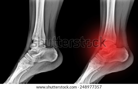 X-rays of leg fracture patients , Ankle - stock photo