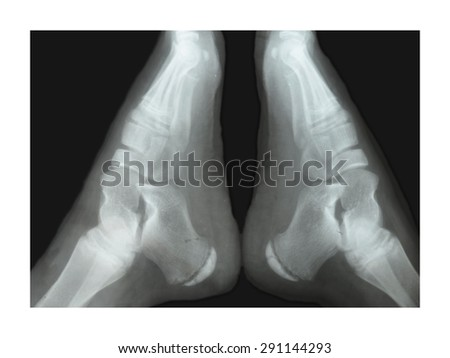 X-rays of the ankle. two legs - stock photo
