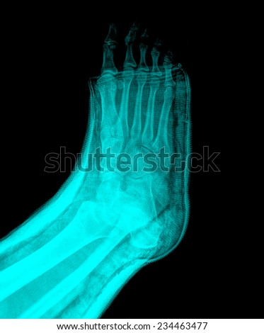xray broken foot in a cast - stock photo