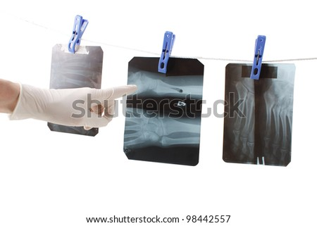 xray image of hands isolated on white - stock photo