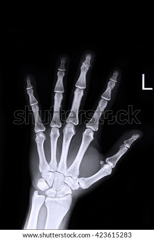 Xray left hand ; Show fracture middle finger left hand - stock photo