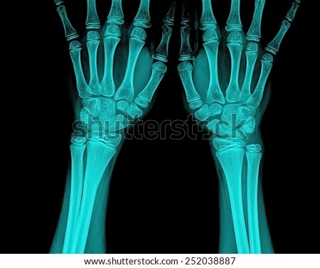 Xray of a wrist - stock photo