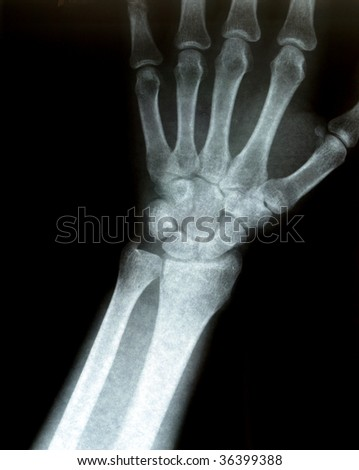 Xray of a wrist. Some film grain visible. - stock photo