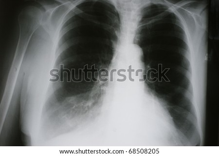 Xray of Chronic Obstructive Pulmonary Disease, COPD, with Right Middle Lobe Atelectasis secondary to lung cancer, hyperinflated lungs and Artherosclerotic calcifications of the thoracic aorta - stock photo