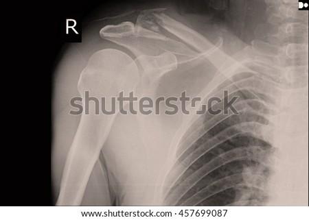 xray shoulder : frozen shoulder right - stock photo
