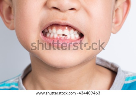 Young Asian boy showing two missing frontal teeth after dental extraction - stock photo