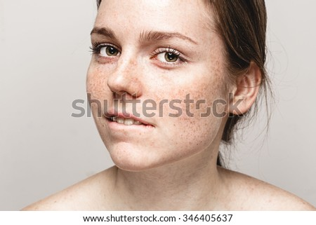 Young beautiful freckles woman face portrait with healthy skin bite lips  - stock photo