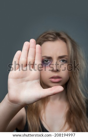Young fair-haired girl with black eye on background warning us with her hand - stock photo
