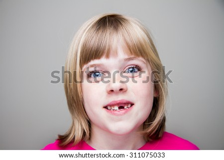Young girl with a toothless grin - stock photo