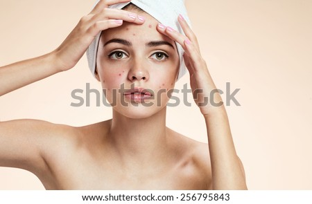 Young lady squeezing her pimples, removing pimple from her face. Woman skin care concept / photos of ugly problem skin girl on beige background   - stock photo