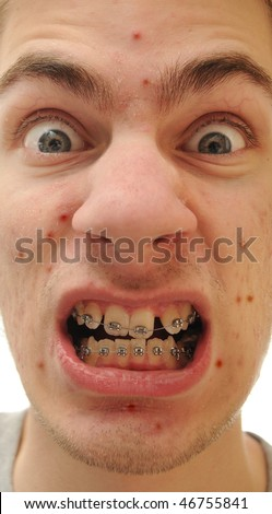 Young white Caucasian man shows off his new braces. He has an acne pimples problem and his teeth are crooked - stock photo