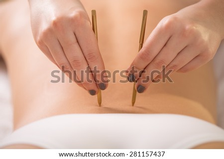Young woman having her lumbar back acupuncture - stock photo