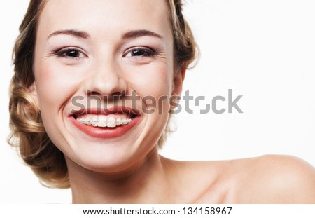 Young woman portrait with dental braces - stock photo