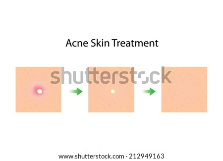 A illustration about step to acne skin treatment - stock vector