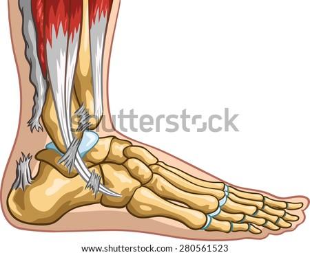 Achilles tendon rupture. - stock vector