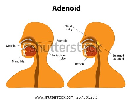 Adenoid. Side view to show the position of the adenoids. The adenoids are glands found at the back of the throat. The tonsils and adenoids form a ring of tissue that helps to fight infection. - stock vector