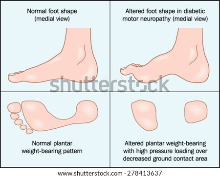 peripheral neuropathy feet treatment
