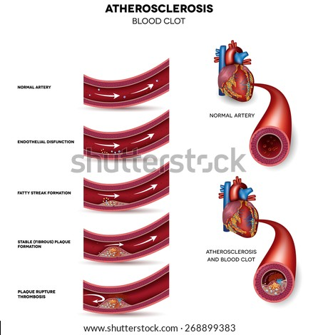 Atherosclerosis. Detailed illustration of Atherosclerosis stages, normal heart and damaged heart muscle as a result of the blood clot. - stock vector