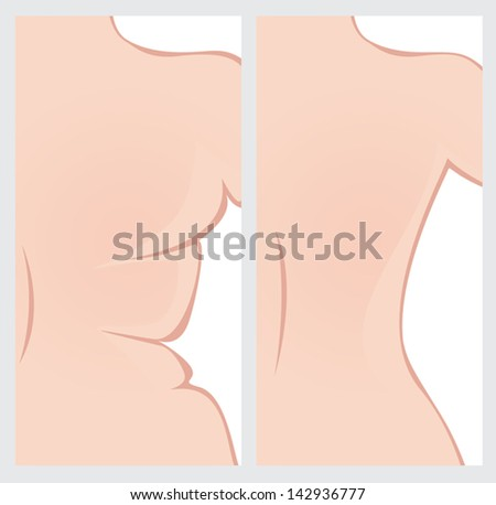 Back right side before and after weight loss. Vector image - stock vector