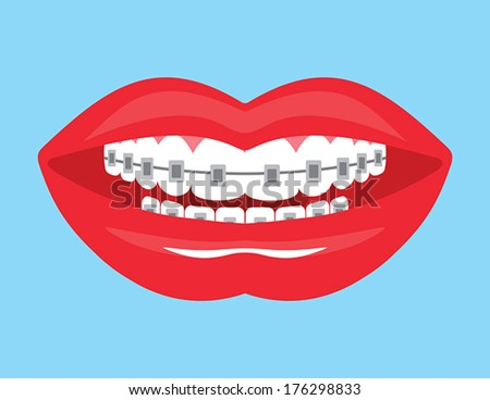 Beautiful smile with aesthetic braces - stock vector