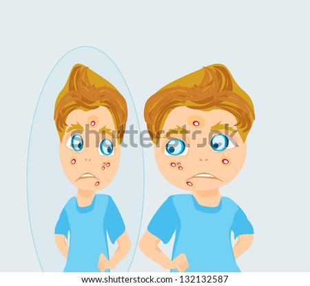 boy in puberty with acne - stock vector