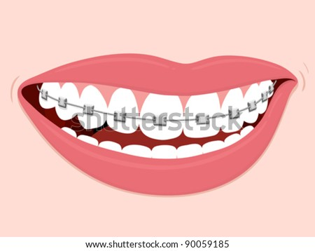 Braces Corrective Orthodontics, smiling female mouth with healthy teeth and braces - stock vector
