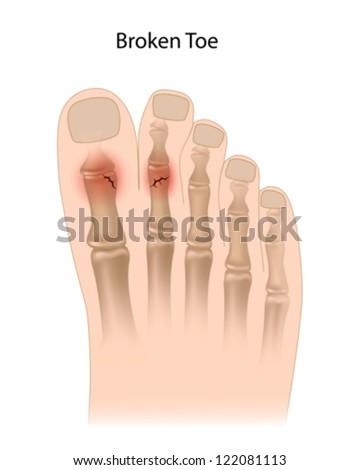 Broken toe - stock vector