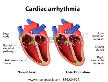 Cardiac arrhythmia. cardiac dysrhythmia or irregular heartbeat. Medical illustration - stock vector