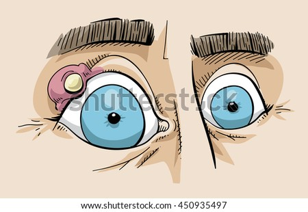 Cartoon of a close up of a stye on the eyelid of a person's eye. - stock vector