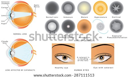 Cataract. Eye disease cataract. The structure of the eye. A cataract is an clouding crystalline lens inside the eye. Eye cataracts affected. Types of Cataract - stock vector