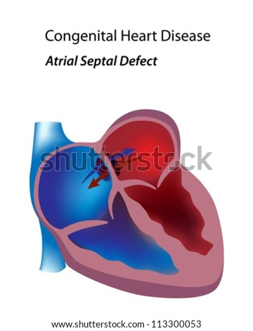 Congenital heart disease: atrial septal defect - stock vector