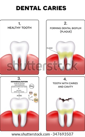 Dental caries formation, dental plaque, loss of calcium, phosphate and finally caries and cavity - stock vector