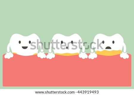 dental cartoon vector, tooth periodontal disease with plaque or tartar - stock vector