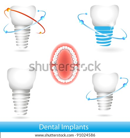 Dental implants. Beautiful bright colors - stock vector