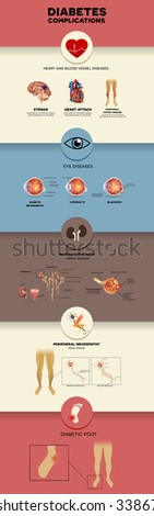 Diabetes complications affected organs detailed info graphic. Diabetes affects nerves, kidneys, eyes, vessels, brain, heart and skin. - stock vector
