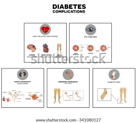 Diabetes complications affected organs. Diabetes affects nerves, kidneys, eyes, vessels, heart and skin. - stock vector