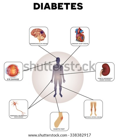 Diabetes complications detailed info graphic on a white background - stock vector
