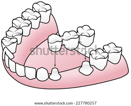 Diagram showing the process of fitting a prosthetic dental fixed bridge over two prepared teeth on either side of a missing tooth. - stock vector