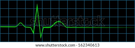 Electrocardiogram Showing Last Normal Heart Beat And No Life Sign - stock vector