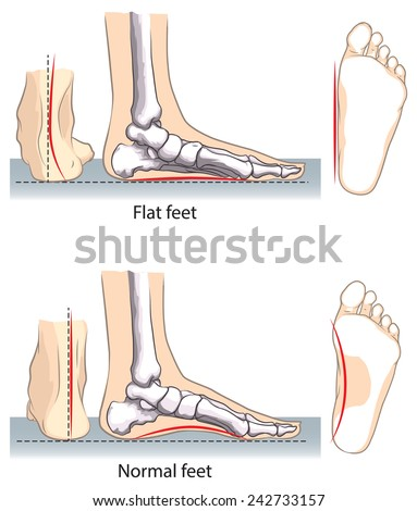 Flat and normal feet. - stock vector