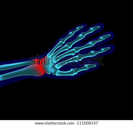 hand pain - stock vector