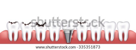 Healthy teeth, teeth with caries and dental implant, beautiful bright illustration. Various teeth conditions - stock vector