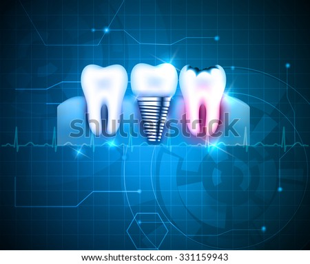 Healthy tooth, tooth with caries and dental implant on a abstract blue technology background  - stock vector