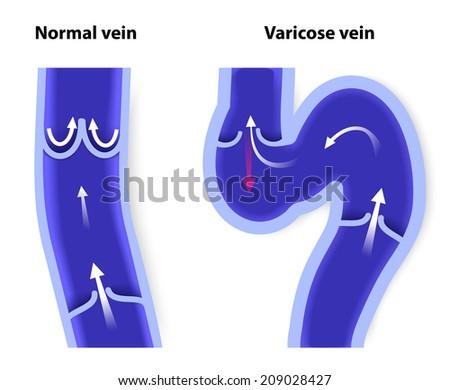 healthy vein and Varicose vein. human veins. diagram , - stock vector