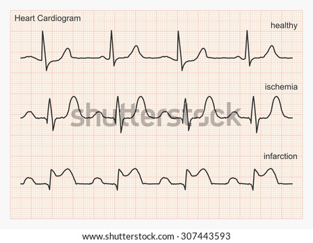 Heart cardiogram waves. Three types of cardiograms: healthy heart rhythm, ischemia, infarction. Graph paper with ECG graphic line. Vector illustration. - stock vector