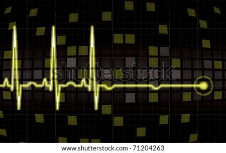 Heart monitor screen in editable vector format - stock vector