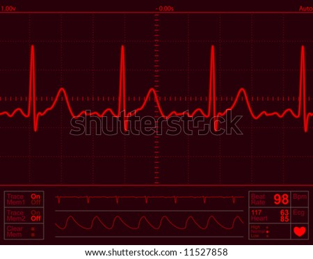 heart monitor screen with normal beat signal - stock vector