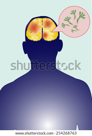 Humans have fungus in the brain. - stock vector